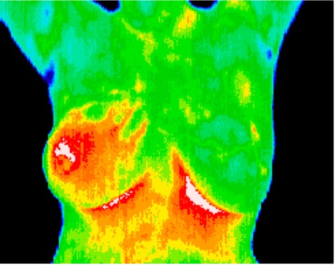 Inflammatory Cancer of Right Breast