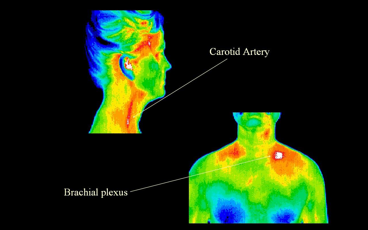 Carotid Artery Occlusion & Brachial Plexus Entrapment