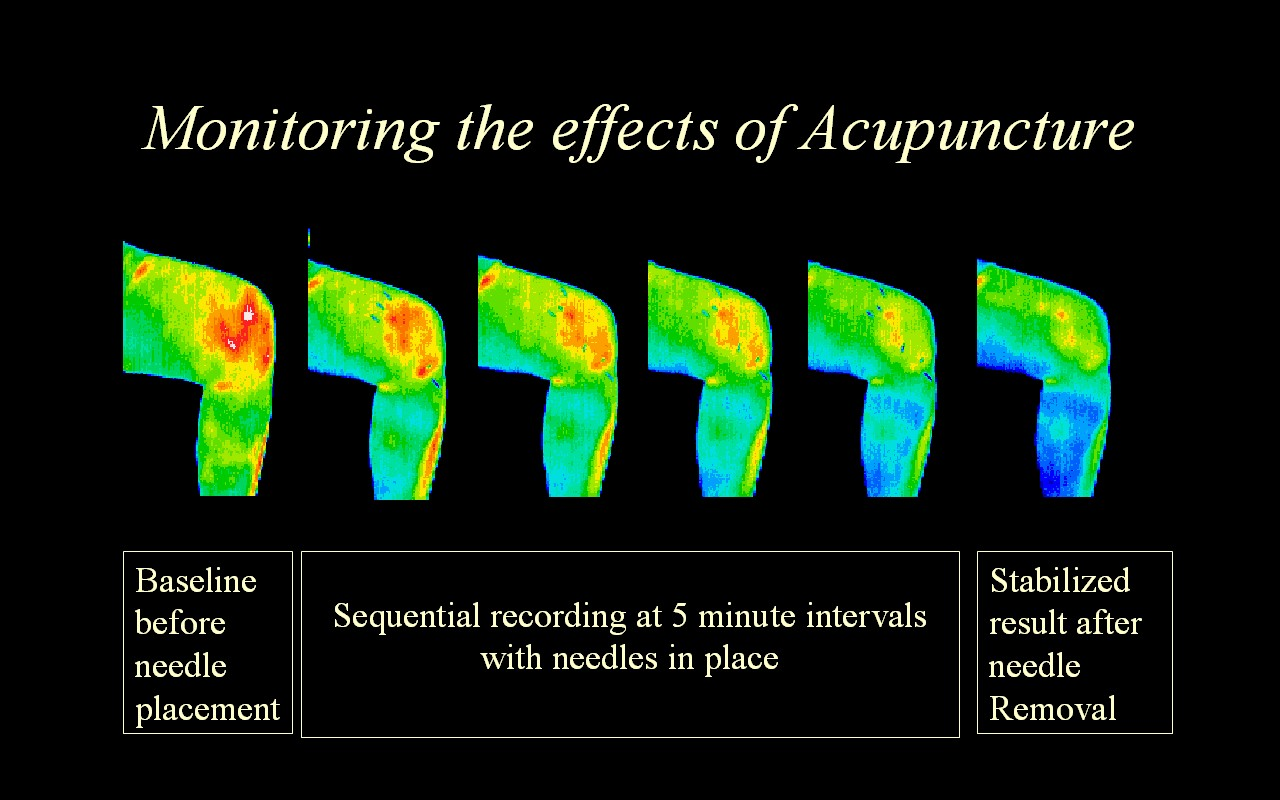 A series of images showing the effects of Acupuncture over time