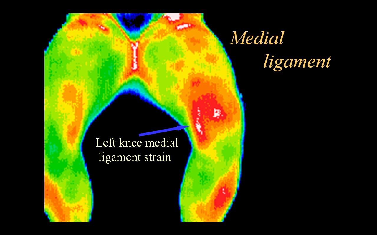 Medial Ligament Strain