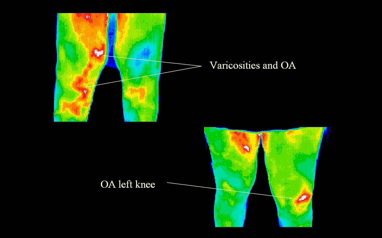 Varicosities & Osteoathritis