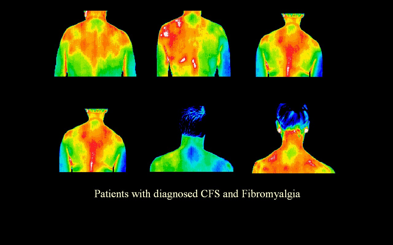 Chronic Fatigue Syndrome & Fibromyalfia